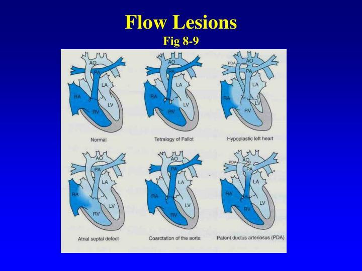 Flow Lesions