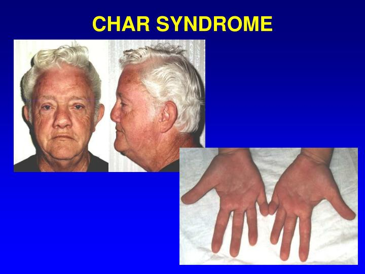 CHAR SYNDROME