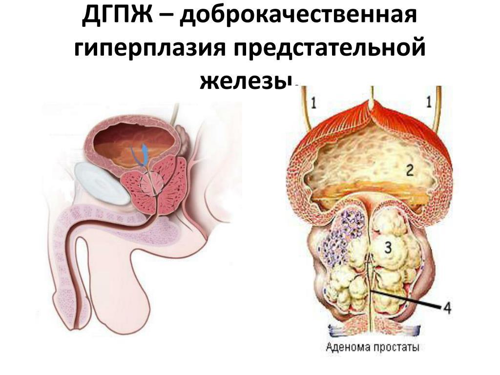 дгпж хронического простатита