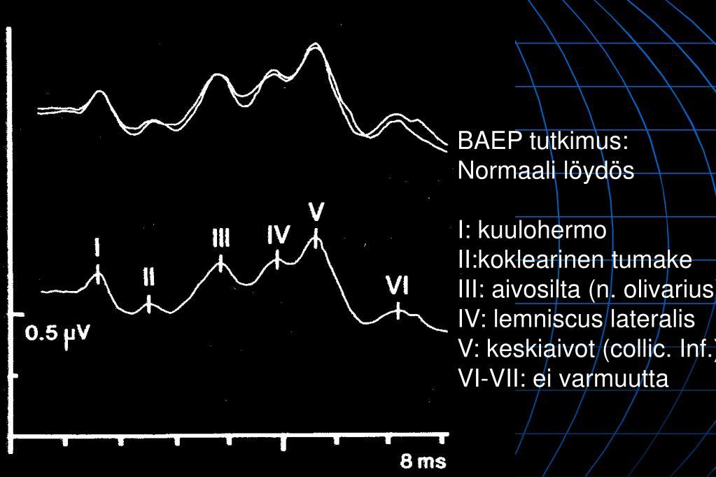 Neurinooma