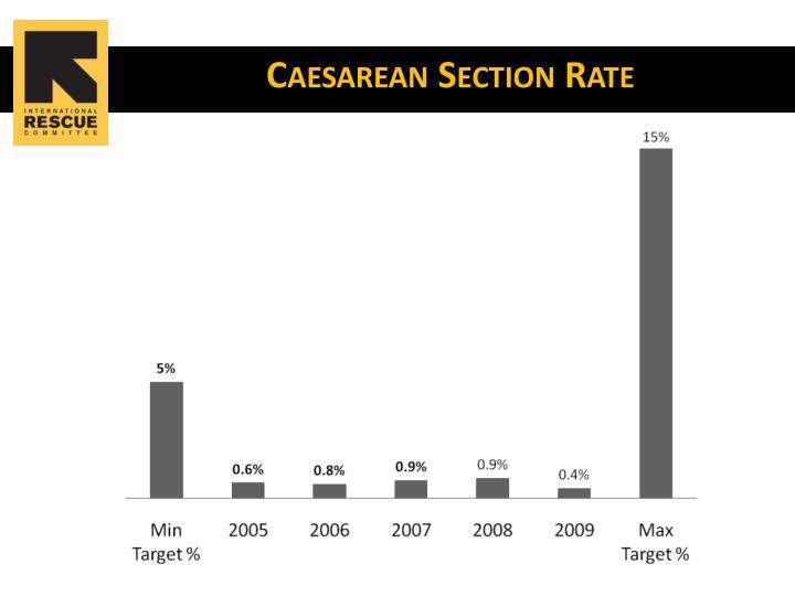 Caesarean Section Rate