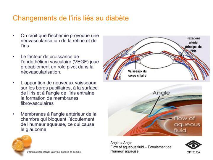 Changements de l'iris liés au diabète