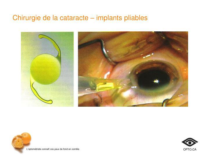 Chirurgie de la cataracte– implants pliables