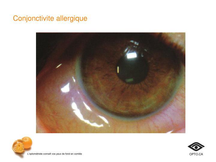Conjonctivite allergique