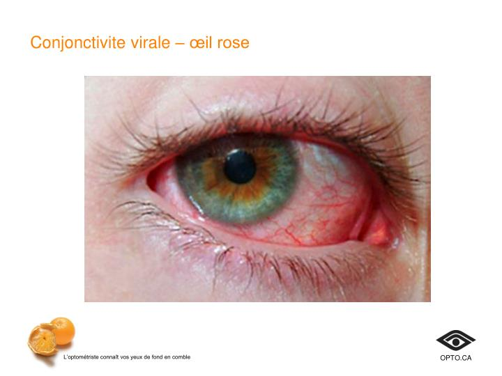 Conjonctivite virale– œil rose