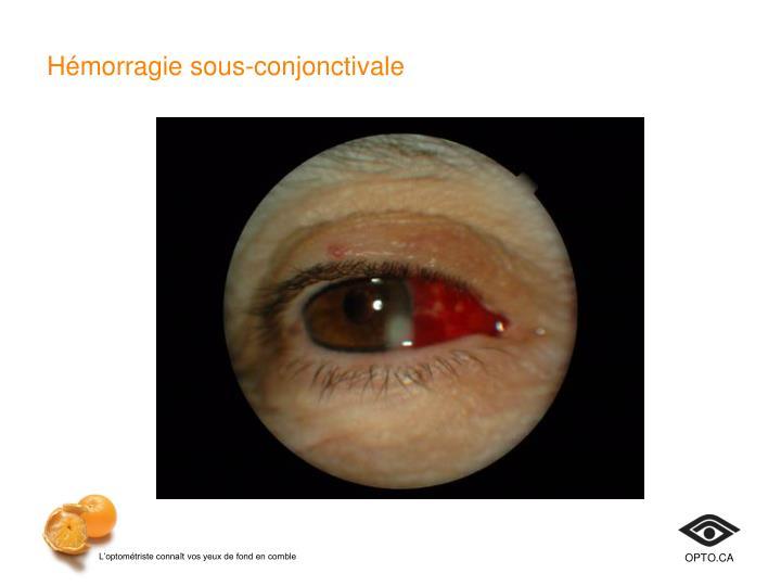 Hémorragie sous-conjonctivale