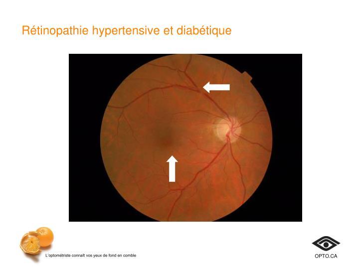 Rétinopathie hypertensive et diabétique