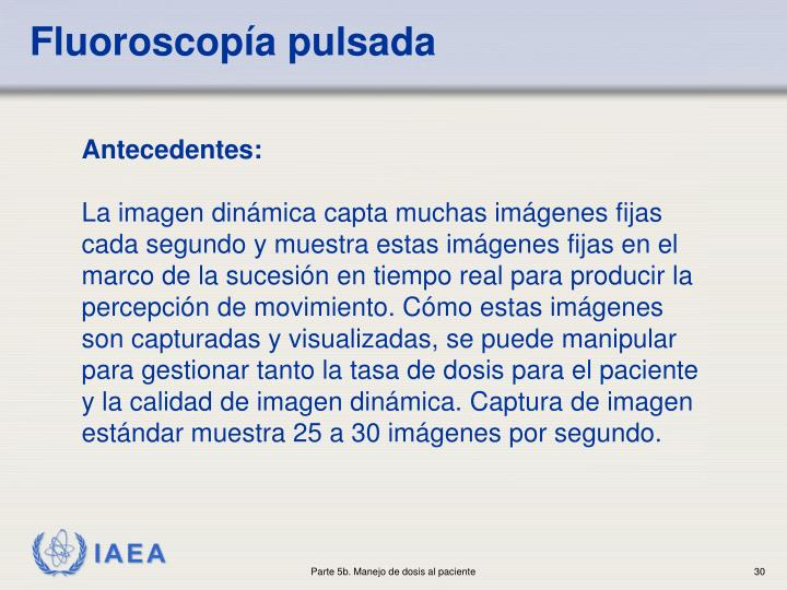 Fluoroscopía