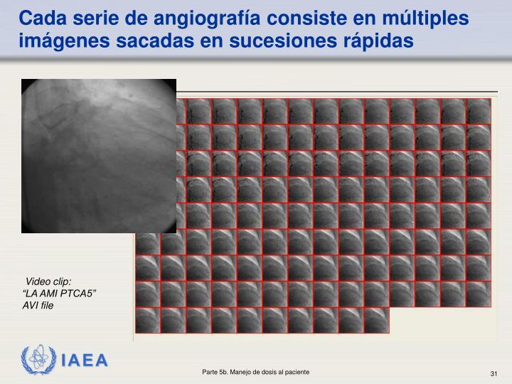 Cada serie de angiografía