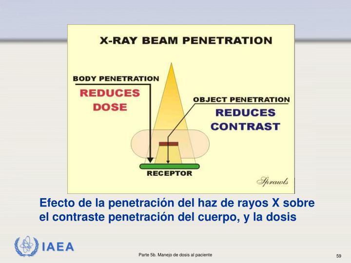 Efecto de la penetración del haz de rayos X sobre el contraste penetración del cuerpo, y la dosis