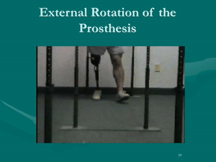 External Rotation of the Prosthesis