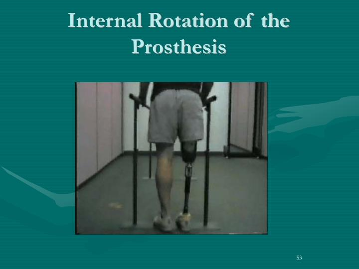 Internal Rotation of the Prosthesis