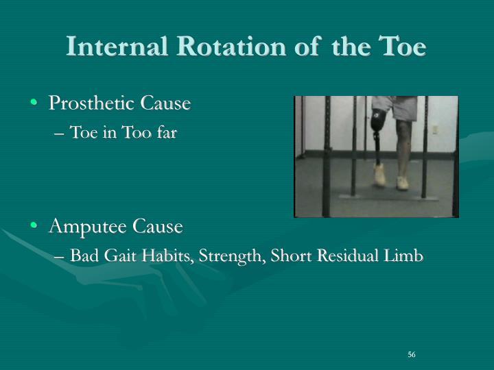 Internal Rotation of the Toe