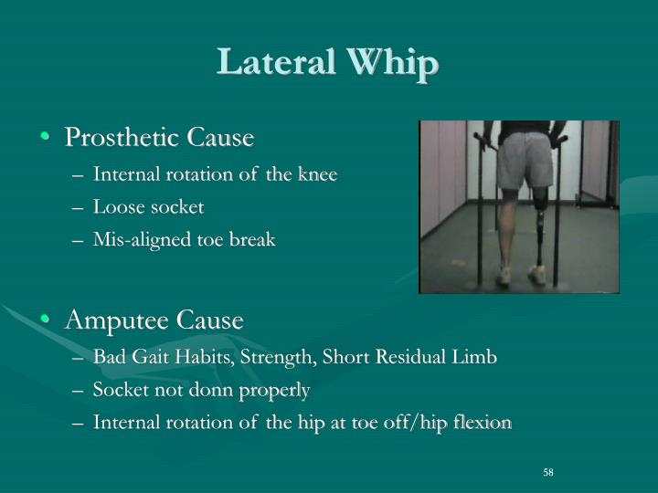 Lateral Whip