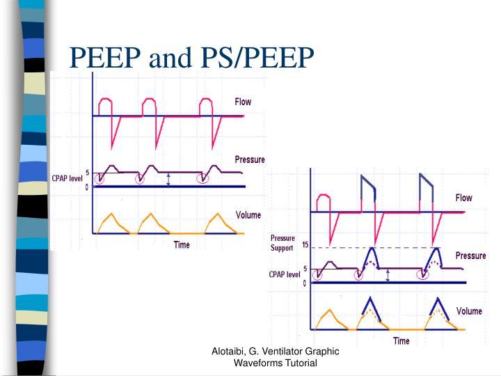 PEEP and PS/PEEP