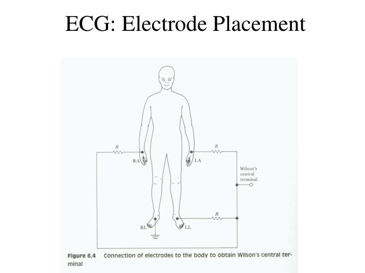 ECG: Electrode Placement