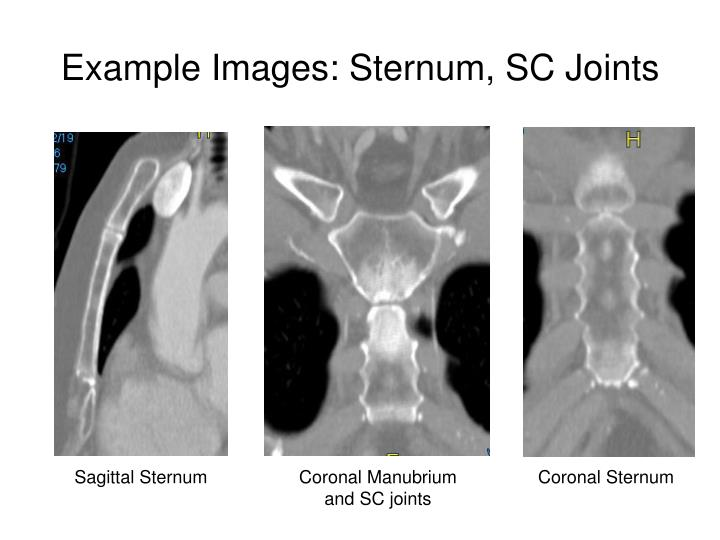 Example Images: Sternum, SC Joints