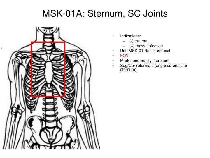 Msk 01a sternum sc joints