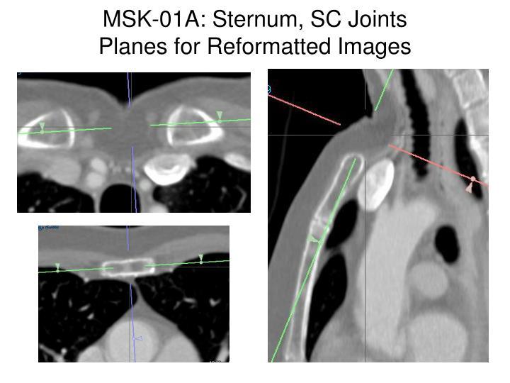 MSK-01A: Sternum, SC Joints