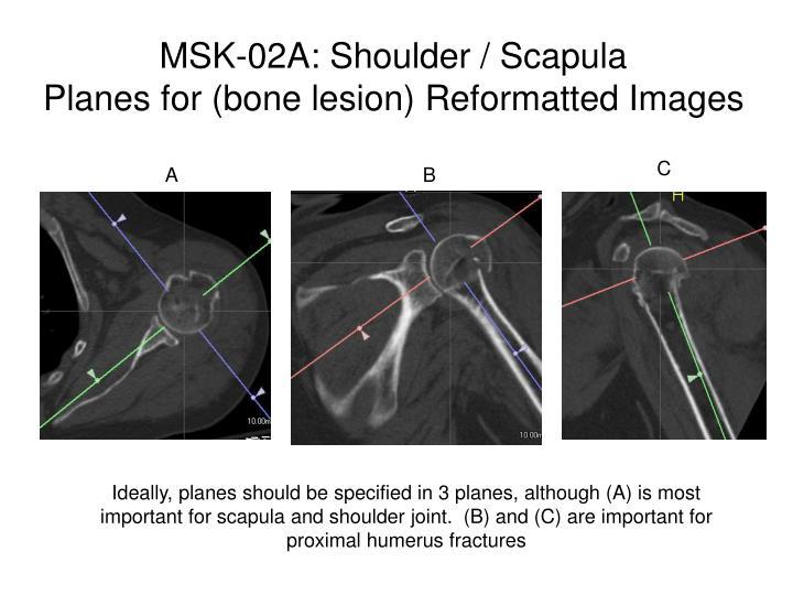 MSK-02A: Shoulder / Scapula