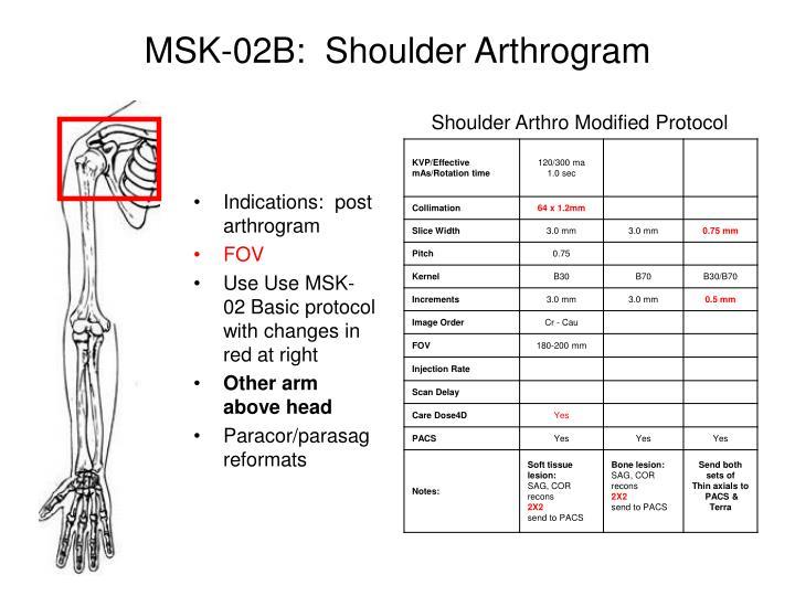 MSK-02B:  Shoulder Arthrogram