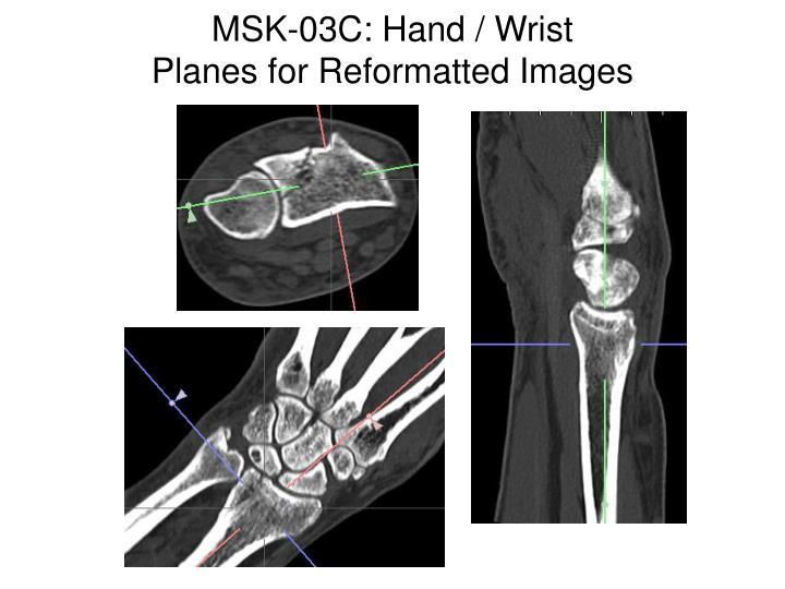 MSK-03C: Hand / Wrist