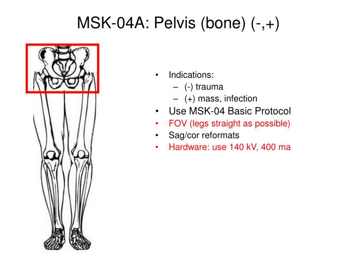 MSK-04A: Pelvis (bone) (-,+)