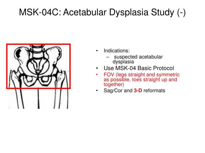 MSK-04C: Acetabular Dysplasia Study (-)