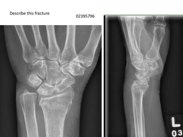 Describe this fracture