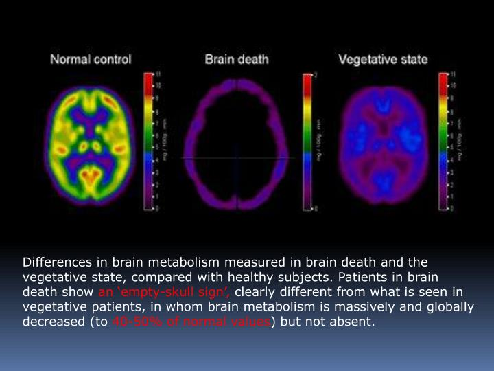 Differences in brain metabolism measured in brain death and the vegetative state, compared with healthy subjects. Patients in brain death show