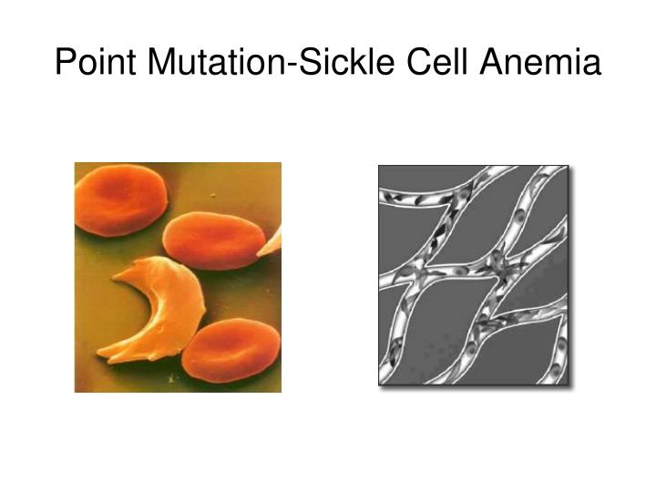 Point Mutation-Sickle Cell Anemia