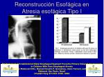 reconstrucci n esof gica en atresia esof gica tipo i4