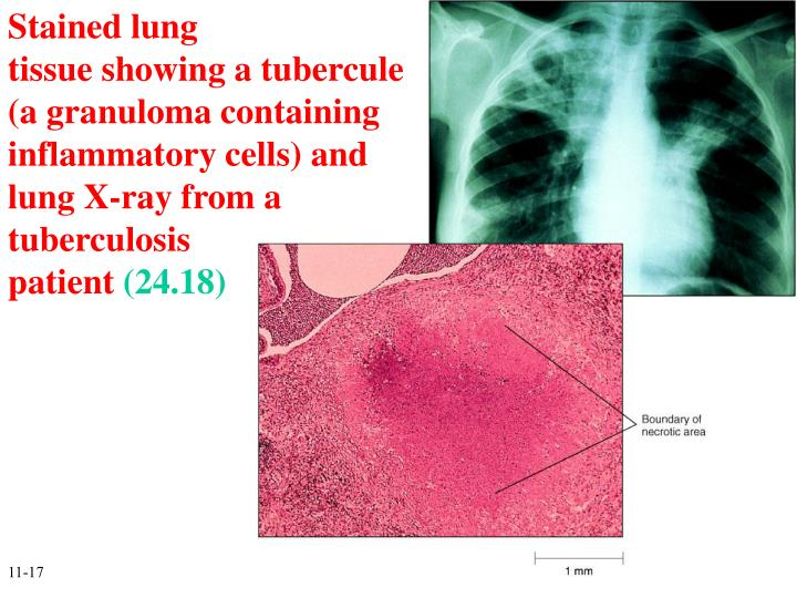 Stained lung