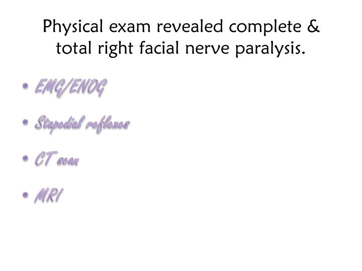 Physical exam revealed complete & total right facial nerve paralysis.