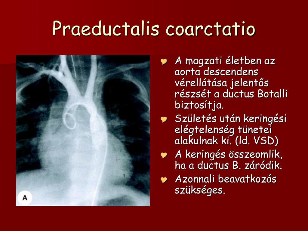 PPT - Shunt nélküli vitiumok PowerPoint Presentation, free..