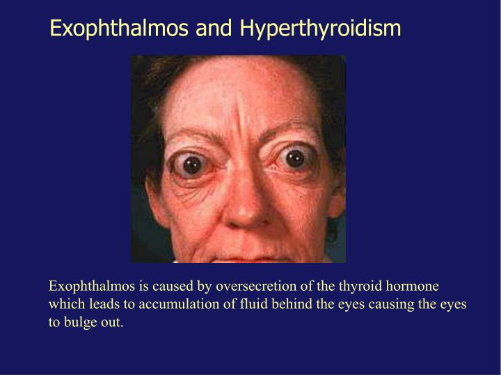 Exophthalmos and Hyperthyroidism