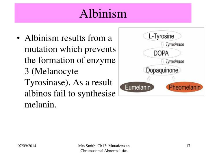albinism essay Albinism on this paper it has to be single spaced size 14 font, and it must include these questions: is this sex oriented six signs or symptoms what's interesting or cool about it can people with albinism function, can they have children, will this disorder cause them to live up to a certain time or death, what number of chromosomes does it.