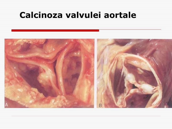 Calcinoza valvulei aortale