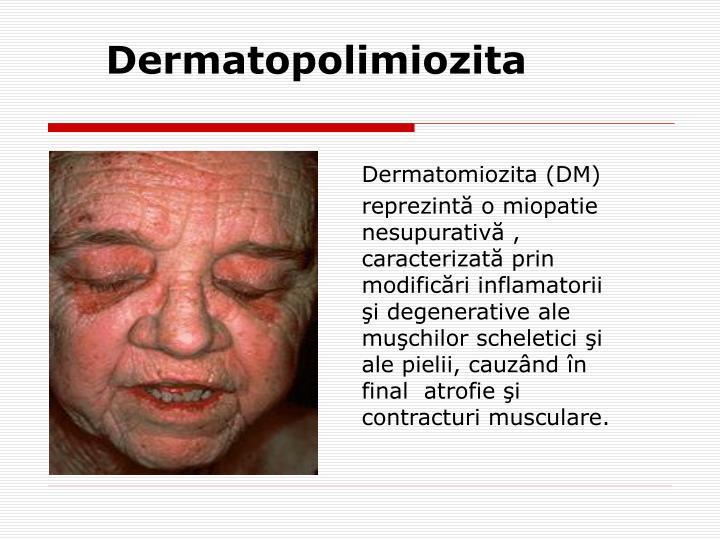 Dermatopolimiozita