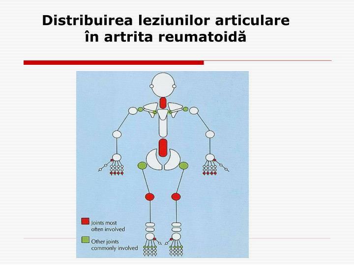 Distribuirea leziunilor articulare în artrita reumatoidă