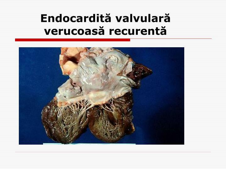 Endocardită valvulară verucoasă recurentă