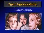 type i hypersensitivity