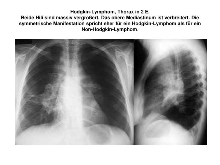 Hodgkin-Lymphom, Thorax in 2 E.