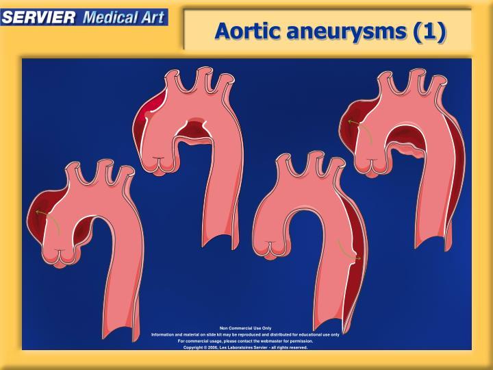 Aortic aneurysms (1)
