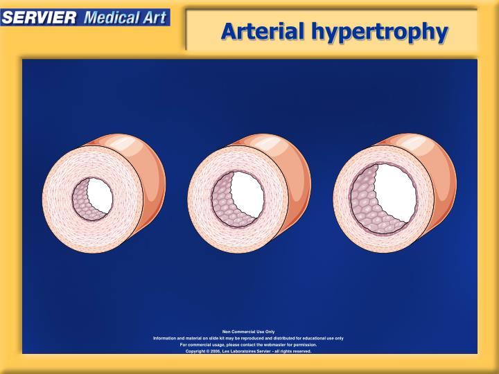 Arterial hypertrophy