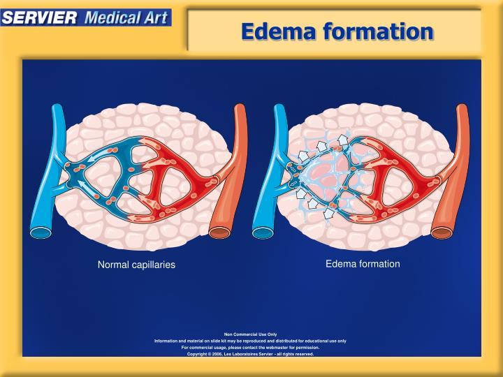 Edema formation