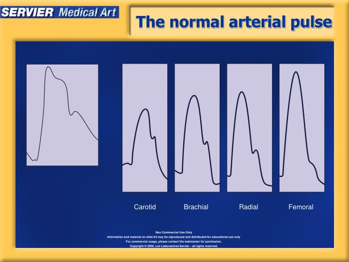 The normal arterial pulse