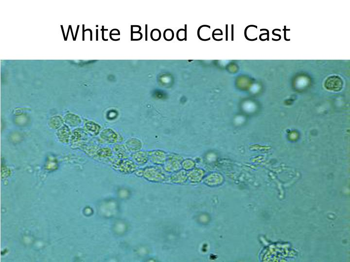 White Blood Cell Cast