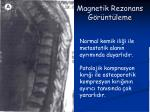 magnetik rezonans g r nt leme