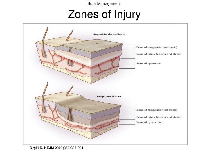Zones of Injury